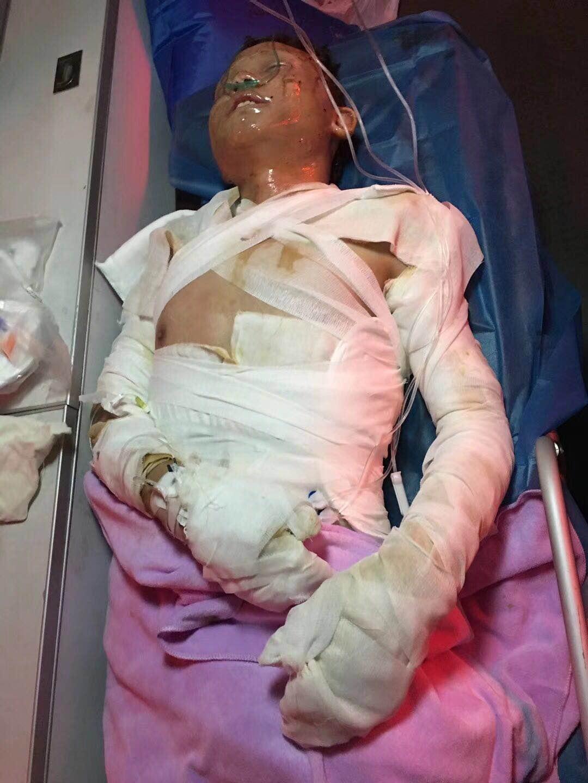 请求救助液化气烧伤患者